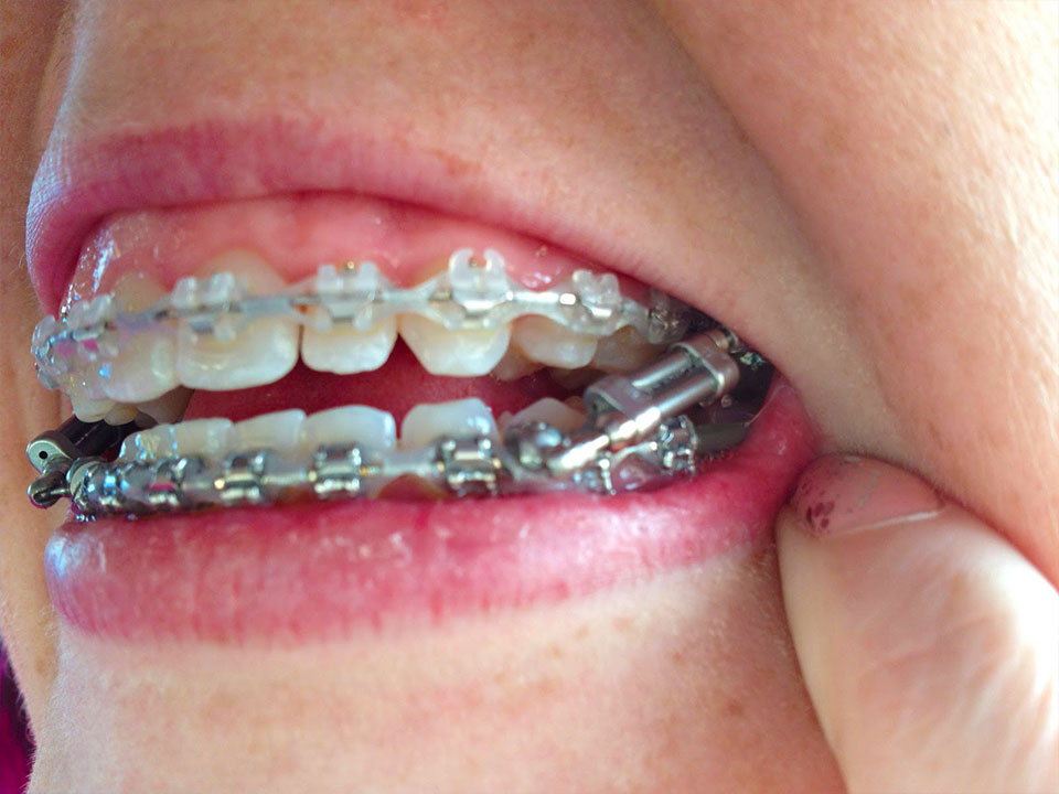 Orthodontic Appliances And Spacers Marc Allen Orthodontics
