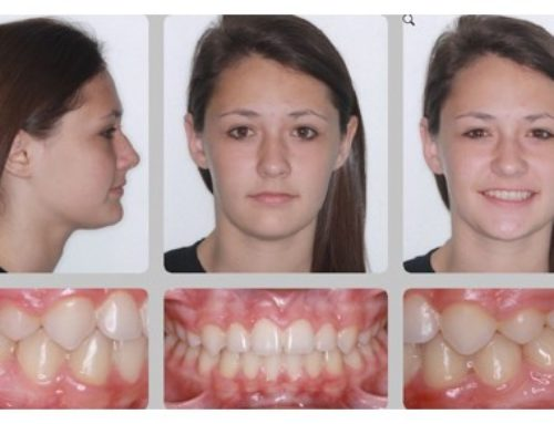 Do Extractions Change Faces?