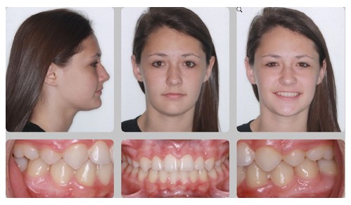 Do Tooth Extractions Change Faces Marc Allen Orthodontics